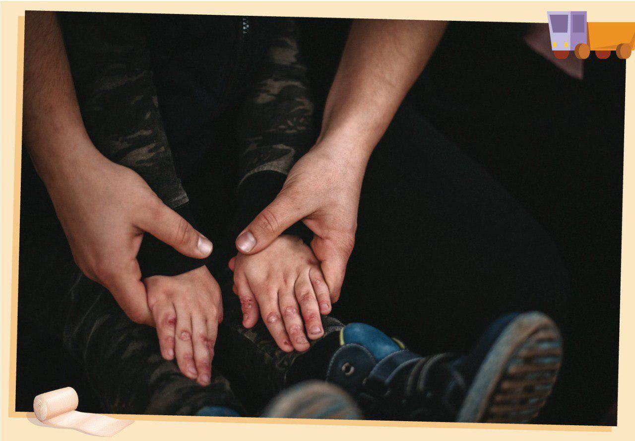 Международный день редких заболеваний: кто в Узбекистане помогает детям с буллезным эпидермолизом